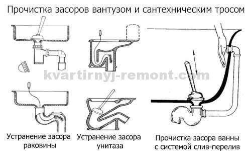 На фото – схема устранения засора с помощью троса и вантуза.