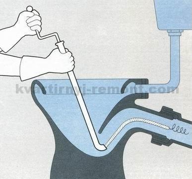 На фото – Использование натяжного троса.